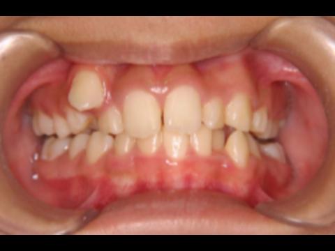 マリア愛子の歯並びが残念!矯正歯科医師は「インビザラインで直す」