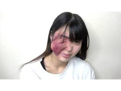 桐崎栄二妹が整形失敗ドッキリで炎上 桐崎家族に非難殺到